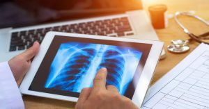 Coding for Vaping-Related Lung Injury