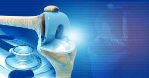 Comprehensive Care for Joint Replacement Model